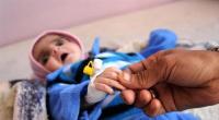 """منظمة دولية تؤكد ارتفاع """"سوء التغذية"""" للأطفال في اليمن إلى نسبة قياسية"""