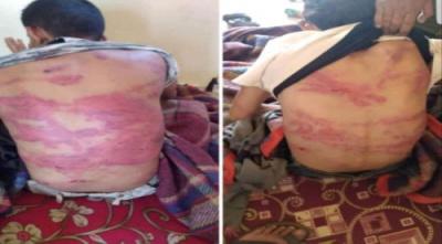 أمنية الضالع تؤكد إلقاء القبض على المتهمين بتعذيب واختطاف ثلاثًة شبان